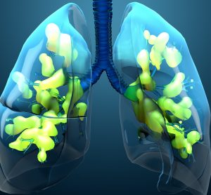 computer image of lungs in blue effected by acute respiratory distress syndrome (ARDS)