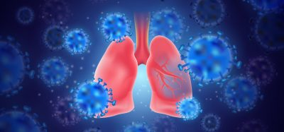 cartoon of blue coronavirus particles surrounding pink human lungs - idea of SARS-CoV-2 lung pathology