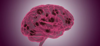 Outline of a brain in purple with dark brown coronavirus particles within it
