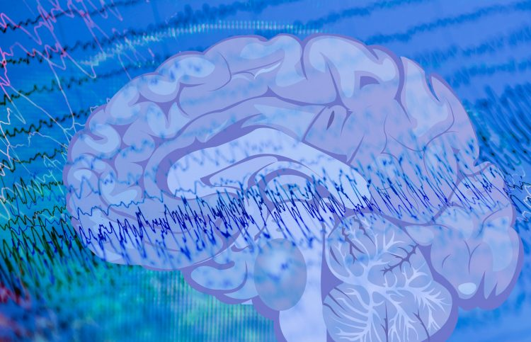 EEG waves indicating an epileptic seizure overlaid with a brain