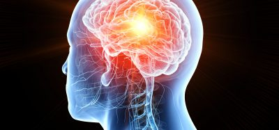 pictur of a red brain within the human anatomy with a glowing red mass indicating a brain tumour