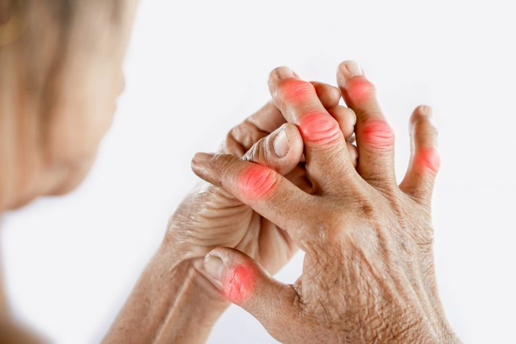Woman holding her swollen finger joints - idea of gout arthritis