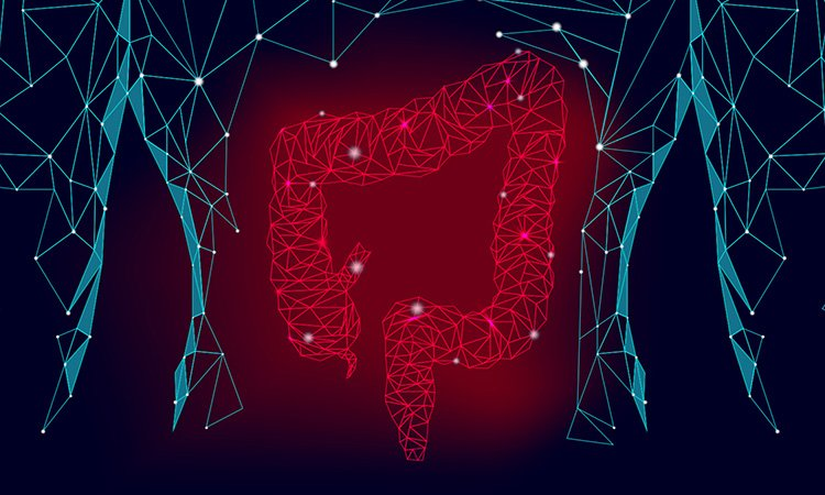 Intestinal organoids
