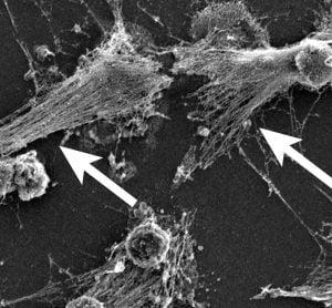 microscopy image of NETs