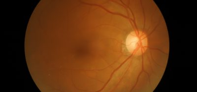 Gene therapy for optic atrophy