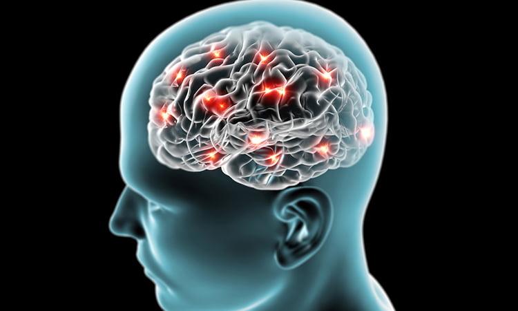 Brain with Parkinson's