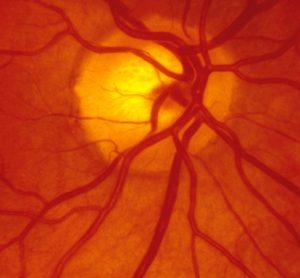 Inside of retina