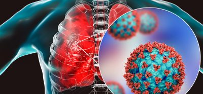 Lungs with a cutaway closeup of a SARS-CoV-2 particle in blue with red cell surface proteins