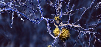 neurons in purple surrounded by yellow protein aggregates - idea of Alzheimer's disease