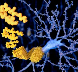 amyloid plaque forming on a neuron