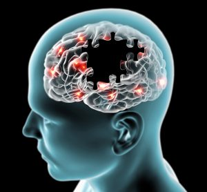 brain with jigsaw piece shaped holes