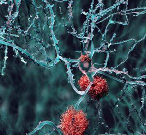 tau-Alzheimer's-disease