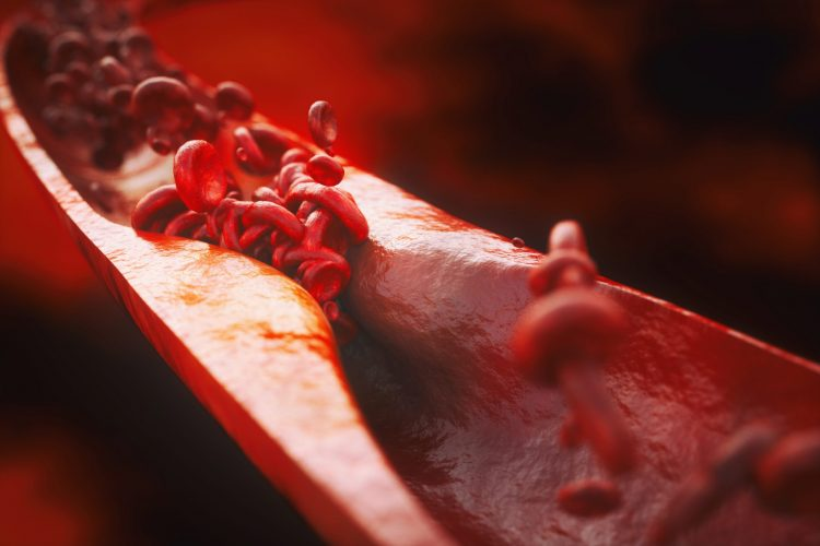 blood vessel thinned by atherosclerosis