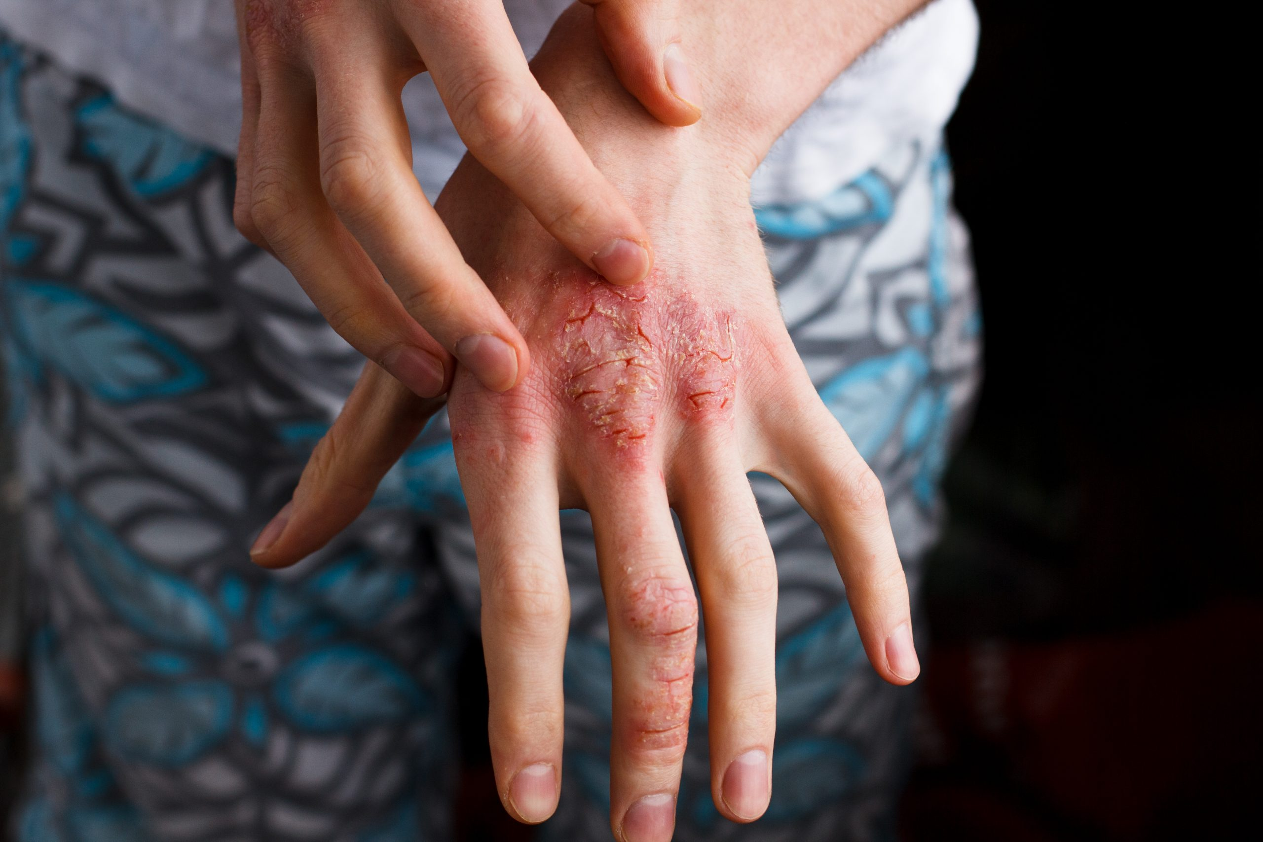 woman with red open sores on her hand - idea of atopic dermatitis flare up