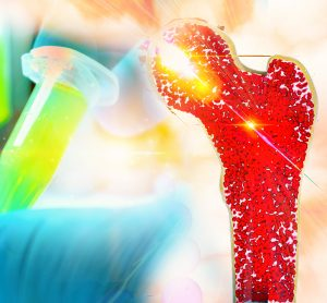 long bone (femur) in red with a gloved hand holding an eppendorf of yellow liquid behind - idea of bone marrow cancer therapy development