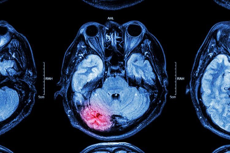 MRI scan of a traumatic brain injury with affected area highlighted in red