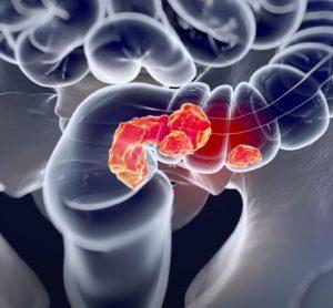 colorectal-cancer-PKC zeta