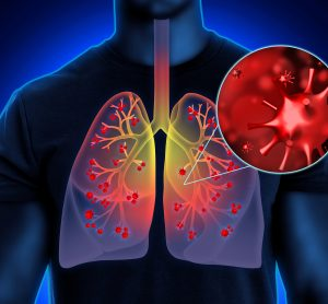 man with red coronavirus particles in his lungs