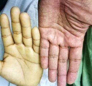 epimutation-cblC-anaemic-hands