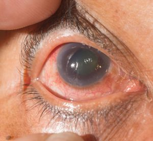 New directions found in understanding, fighting glaucoma