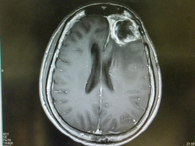MRI of a glioblastoma in the brain of a patient (in frontal lobe near the right eye)