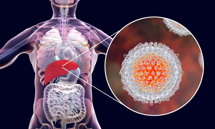 close up of a hepatitis C virus in a cutaway from a human liver