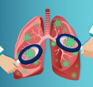 cartoon of magnifying glasses over covid-19 particles in lungs