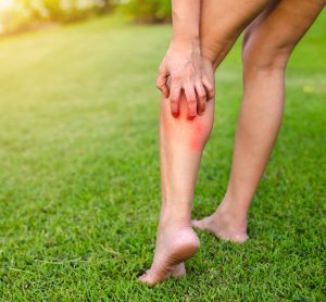 woman scratching the back of her leg while walking on grass - idea of allergic reaction itching