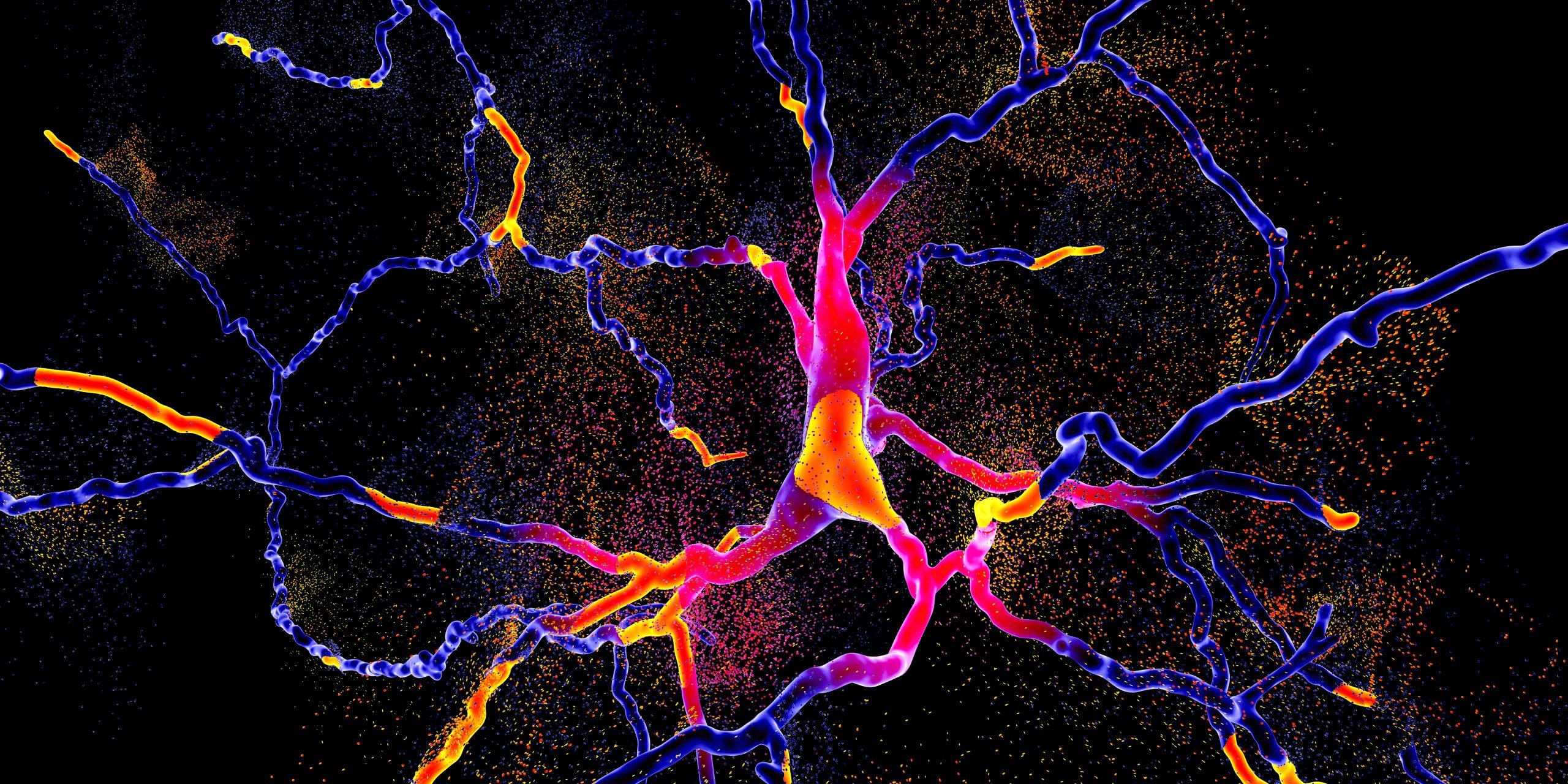 brighly coloured neuron degenerating-neurodegeneration