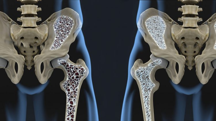 cartoon of two hips and femurs - left on with large black dots in the bone indicating osteoporosis (bone being removed and becoming spongy), the other with smaller dots indicating normal bone