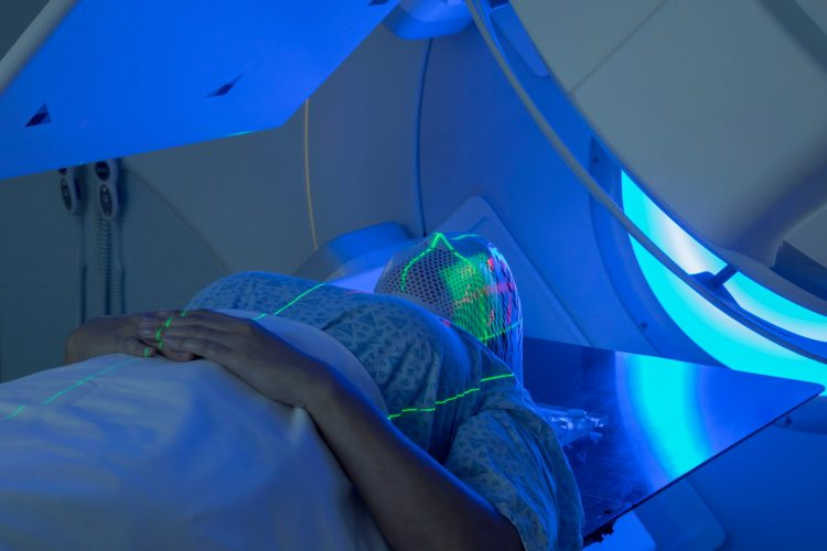 woman undergoing radiation for brain cancer