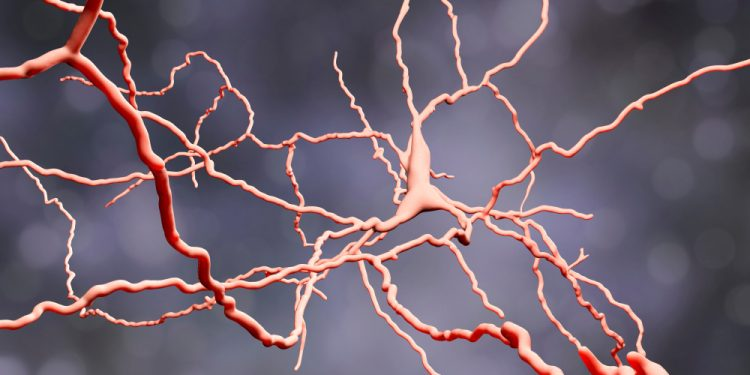 Huntington's disease neuron