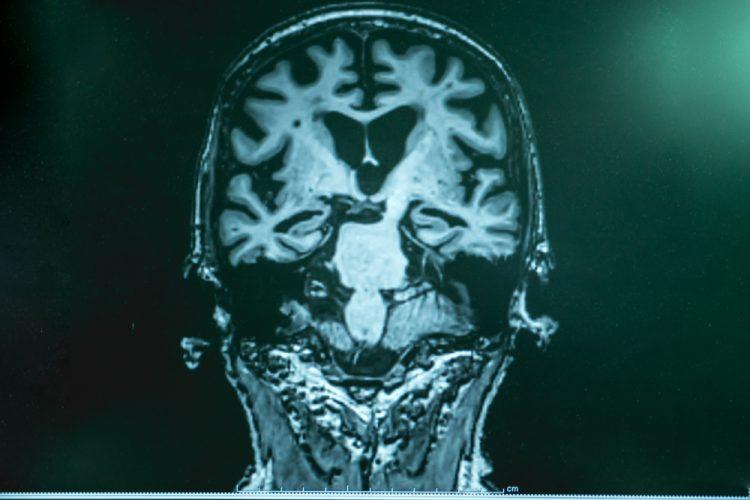 Brain with Alzheimer's