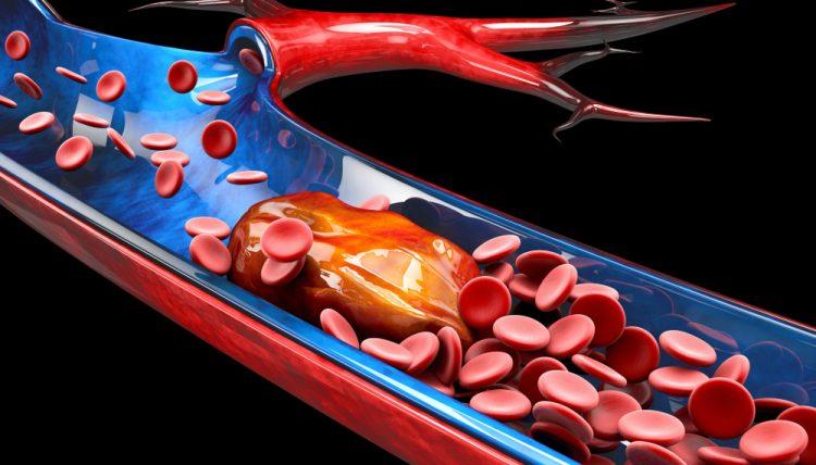 Thrombosis - blood clot