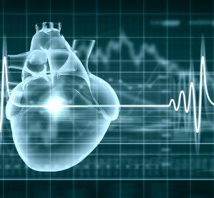 Cardiac imaging analysis