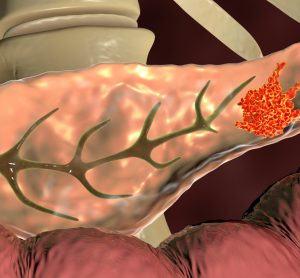 Disrupting pH could fight pancreatic cancer