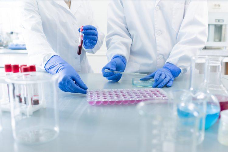 COVID-19 testing in lab
