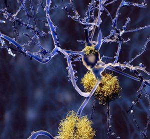 Novel perspectives on anti-amyloid treatment for the prevention of Alzheimer's disease