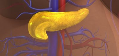 Glowing yellow pancreas in human torso - idea of diabetes, where pancreatic beta cells are destoryed