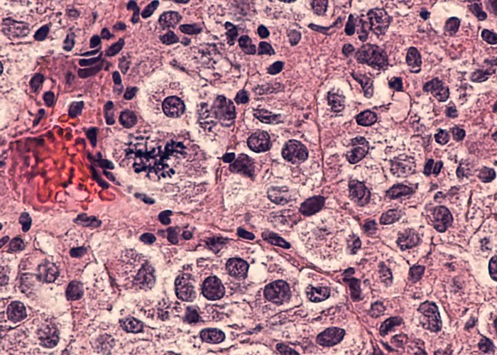 Epigenetic compound inhibits the growth of melanoma cells
