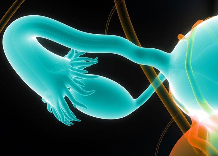 CXCR4 ovarian cancer