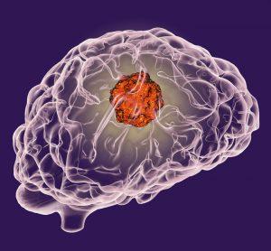 DIPG brain cancer