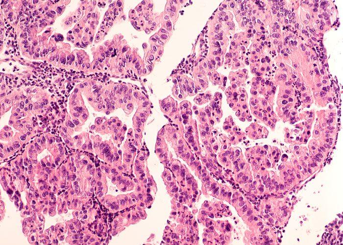 BRCA1