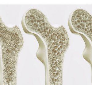 bone deterioration small molecules