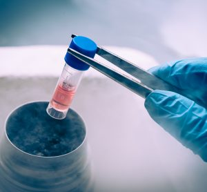stem cell culture stored in liquid nitrogen