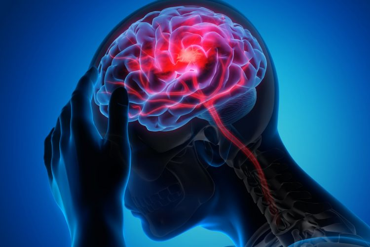 man holding head due to headache/stroke, with brain visible